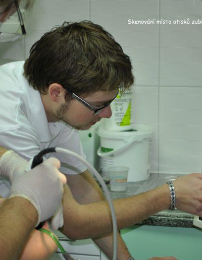 Skenování místo otisků zubů